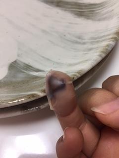 指のその後