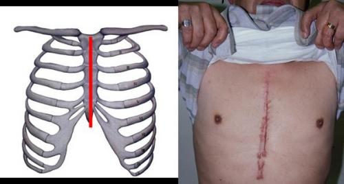 心臓バイパス手術の位置と傷痕
