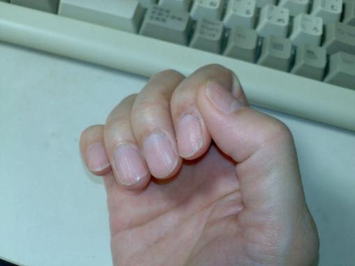爪を切った後