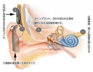 人工内耳の仕組み