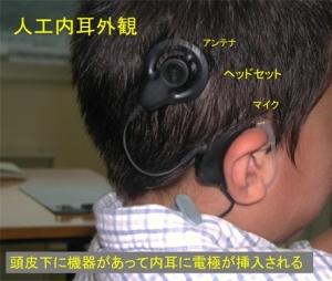 人工内耳外観