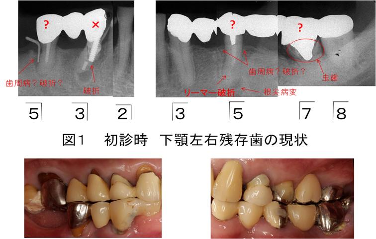 図1 初診時下顎左右残存歯の現状