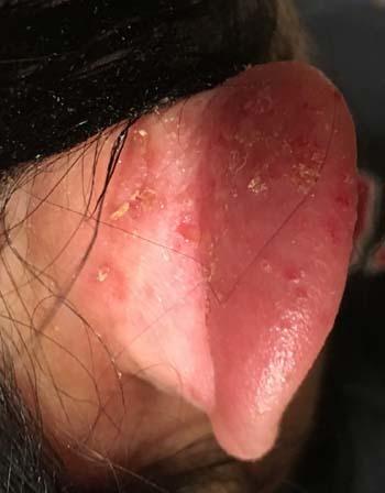 allergy1703.jpg