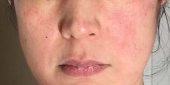 allergy1705.jpg