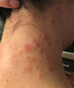 allergy1709.jpg