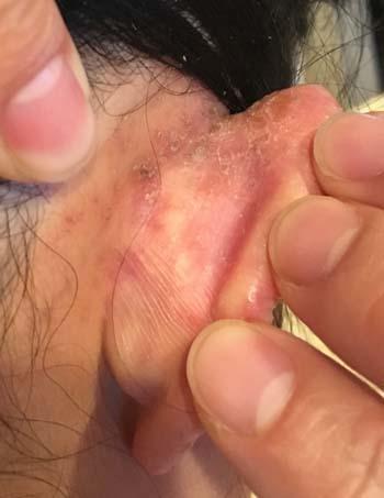 allergy1712.jpg