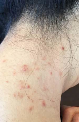 allergy1713.jpg