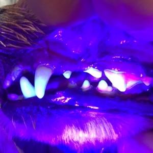 ②歯のライト画像