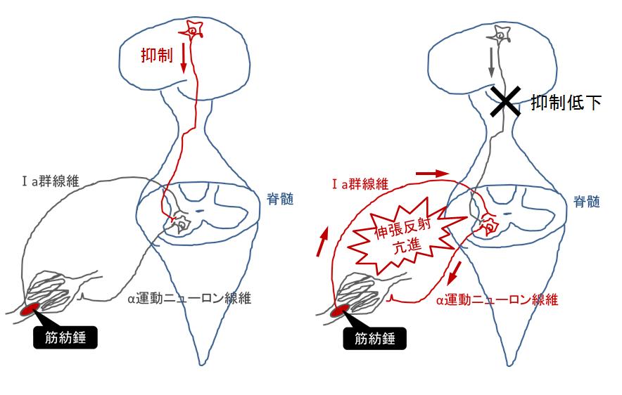 脳損傷による腱反射・伸張反射の亢進メカニズム