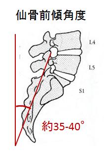 ニュートラルポジションの評価方法 仙骨前傾角度の評価方法