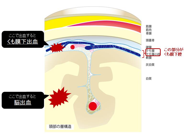 くも膜下出血③ 発症機序、病態と経過~合併症も含めて~ 頭部の層構造