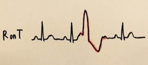 心室期外収縮の重症度を分類するLown分類の使用方法 R on T