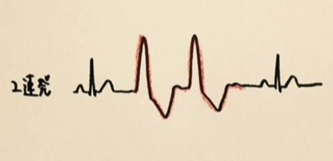 心室期外収縮の重症度を分類するLown分類の使用方法 心室期外収縮 2連発