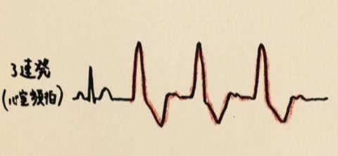 心室期外収縮の重症度を分類するLown分類の使用方法 心室期外収縮 3連発(心室頻拍)