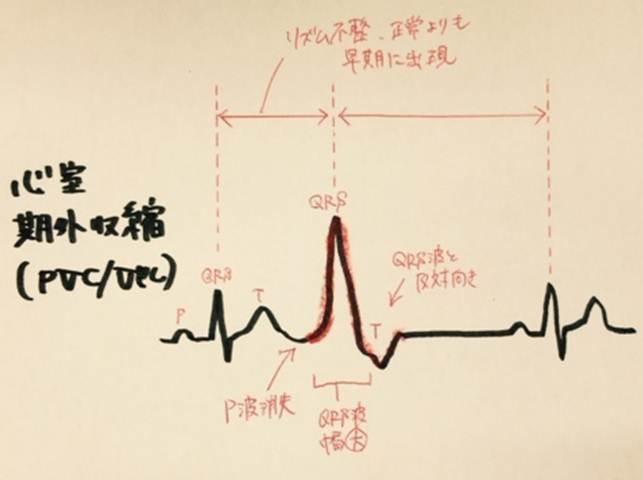 心室期外収縮の重症度を分類するLown分類の使用方法 心室期外収縮