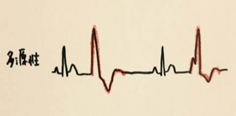 心室期外収縮の重症度を分類するLown分類の使用方法 多源性期外収縮