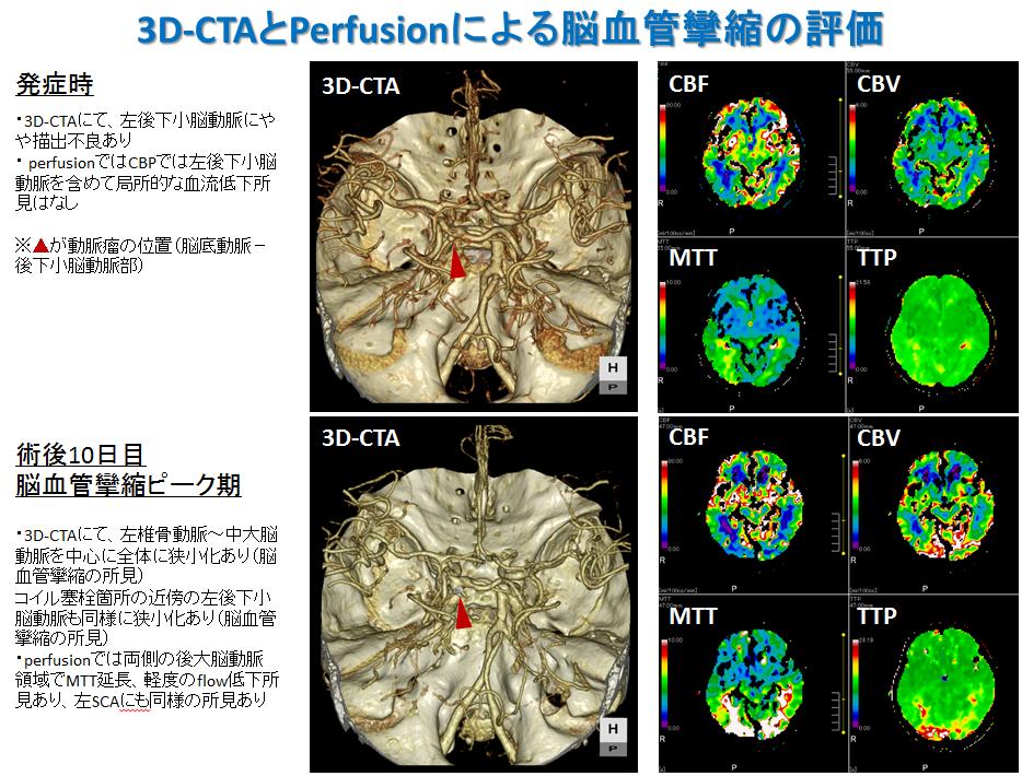 くも膜下出血⑤ リハビリテーション治療 3D-CTAとPerfusionによる脳血管攣縮の評価