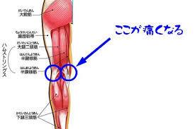 膝 裏 の 痛み 腓腹筋 運動を原因とする膝裏の痛みの正体は?外側が痛い!真ん中が痛む!