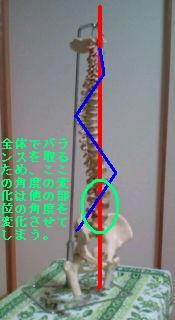 chiro-hernia-no15.jpg