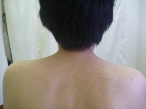 頸部左右・後屈の痛み