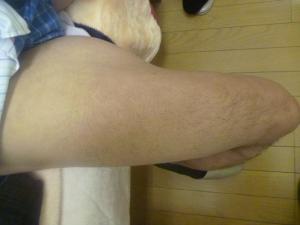 ジョギングによる大腿四頭筋の筋肉痛