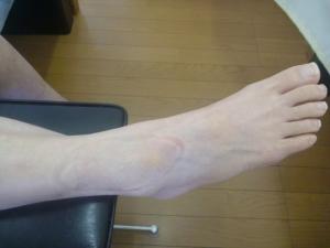 右足関節捻挫