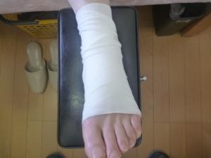 左第1中足趾関節捻挫