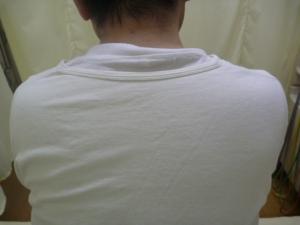 首から背中・脇腹の痛み