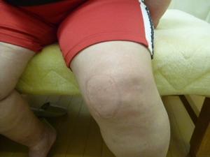 左膝関節捻挫