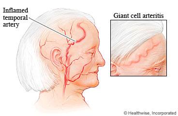 temopral arthritis