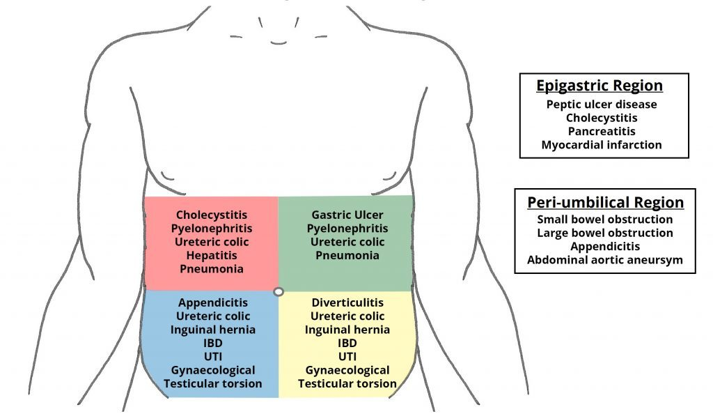 Abdominal-Pain-Differential-Diagnoses_-1024x594.jpg