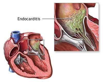 Infective-Endocarditis-Duke-diagnostic-criteria.jpg
