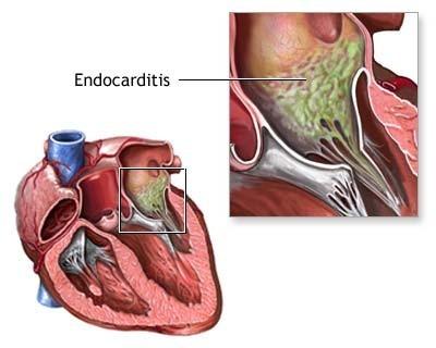 Infective-Endocarditis-Duke-diagnostic-criteria.jpg