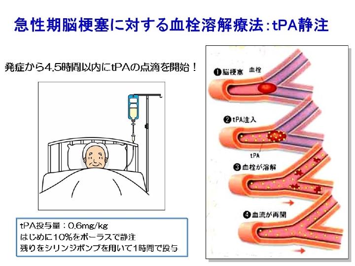 acute_stroke01.jpg