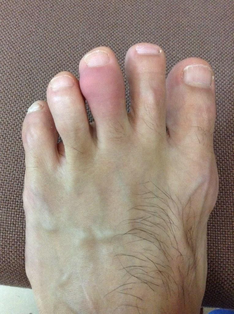 gout.jpg