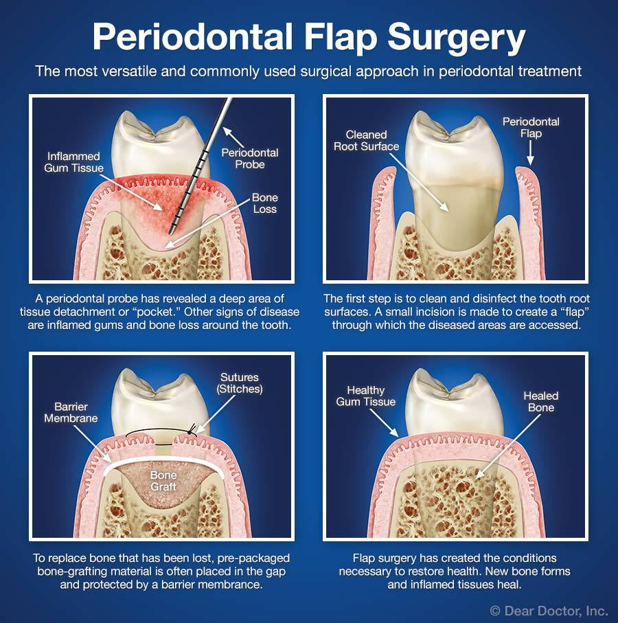 periodontal-flap-surgery.jpg